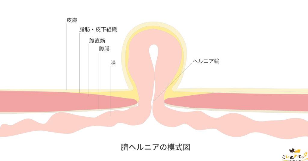 犬の臍ヘルニアの模式図